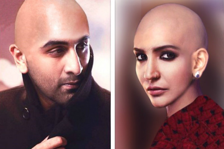 Anushka Sharma Bald