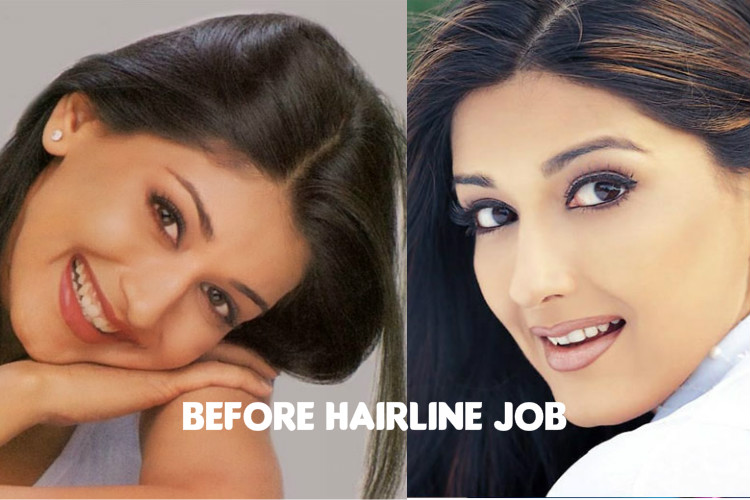 Sonali Before Hairline Job